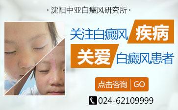 小儿初期患白癜风有哪些症状